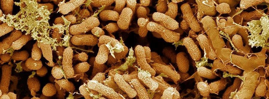 Азотфиксирующие бактерии